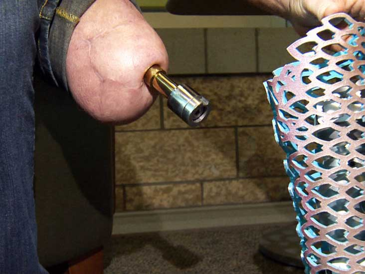انواع قطع عضو پا چیست؟