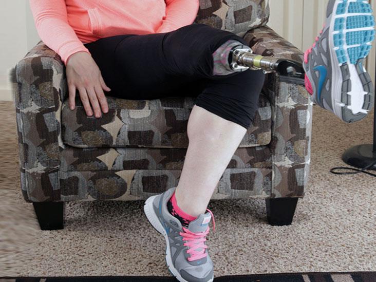 قطع عضو پا (آمپوتاسیون) به دلیل عفونت